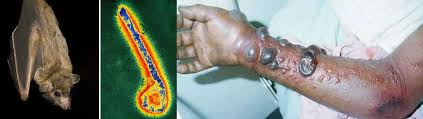 Marburg virus transmission, disease, symptoms, diagnosis & treatment